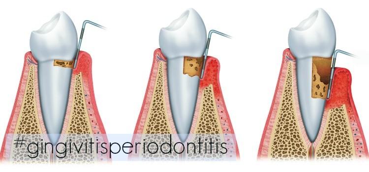 Cómo sobrevivir a una enfermedad en los dientes