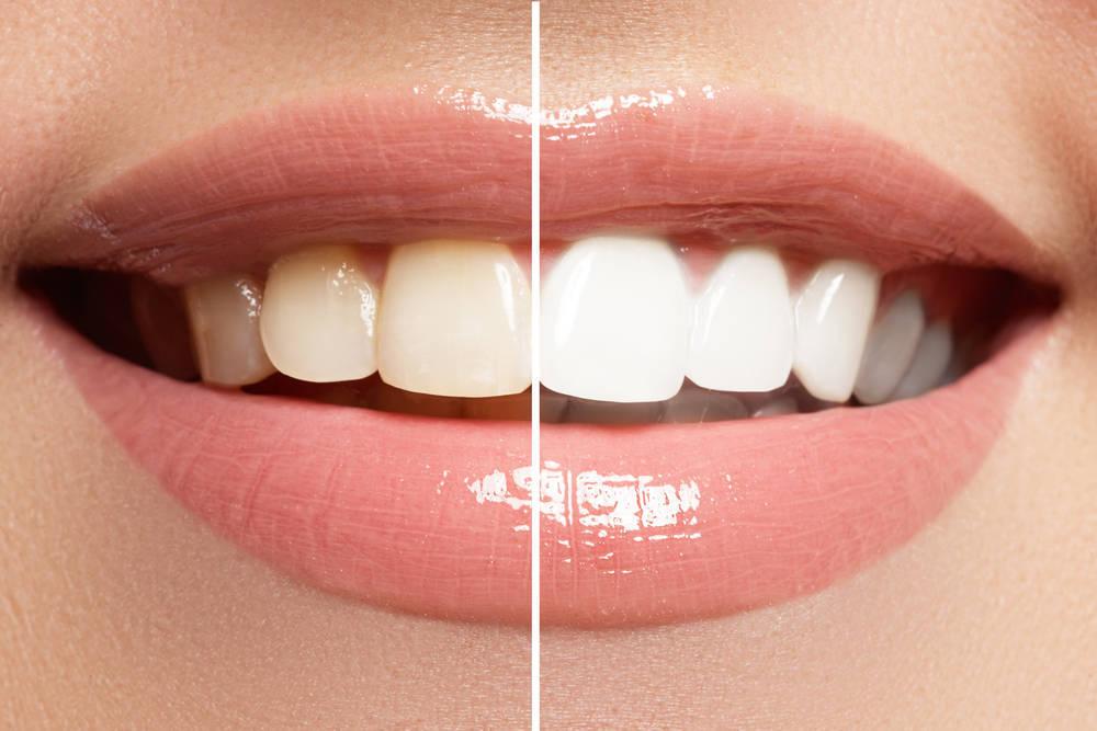 Apostar por una buena clínica dental